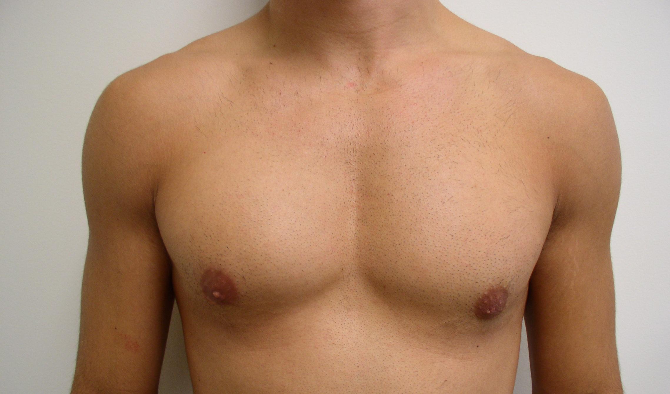 payudara lelaki