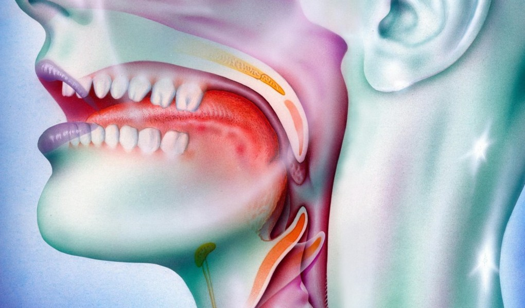 kanker tenggorokan