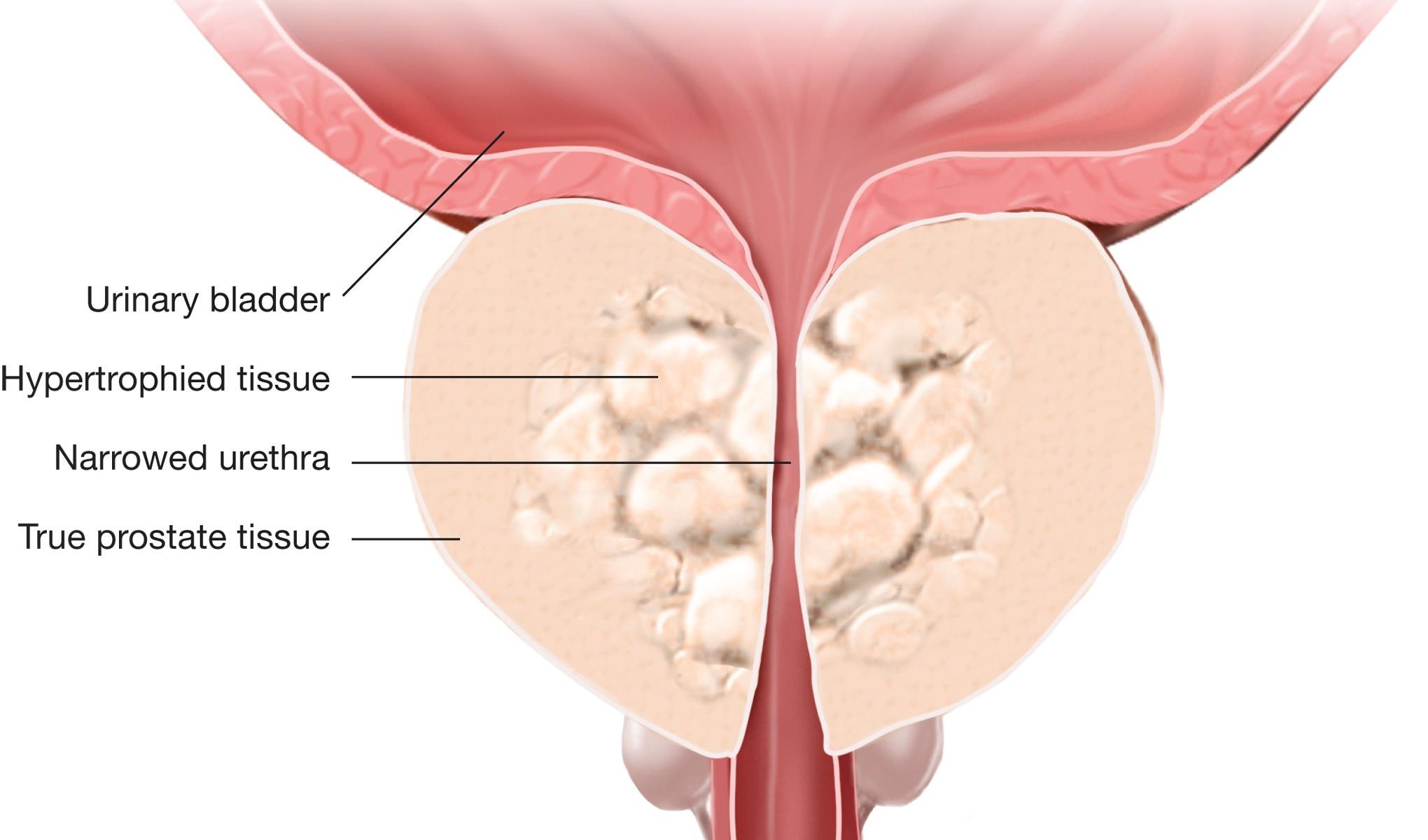 pembesaran prostat jinak