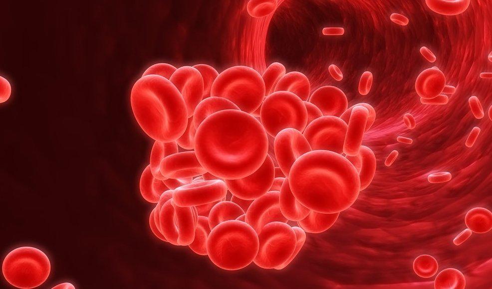 Anemia Gejala dan Penyebabnya