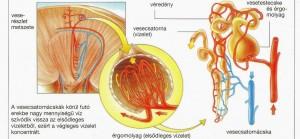 Penyakit Diabetes Insipidus
