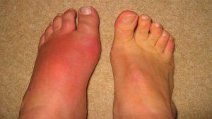 penyebab dan gejala asam urat