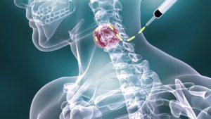 kanker getah bening limfoma