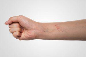 penyakit kulit eksim