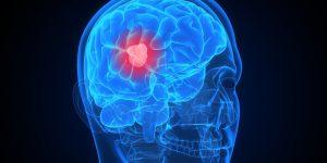 gejala tumor otak