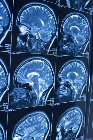 tumor_otak