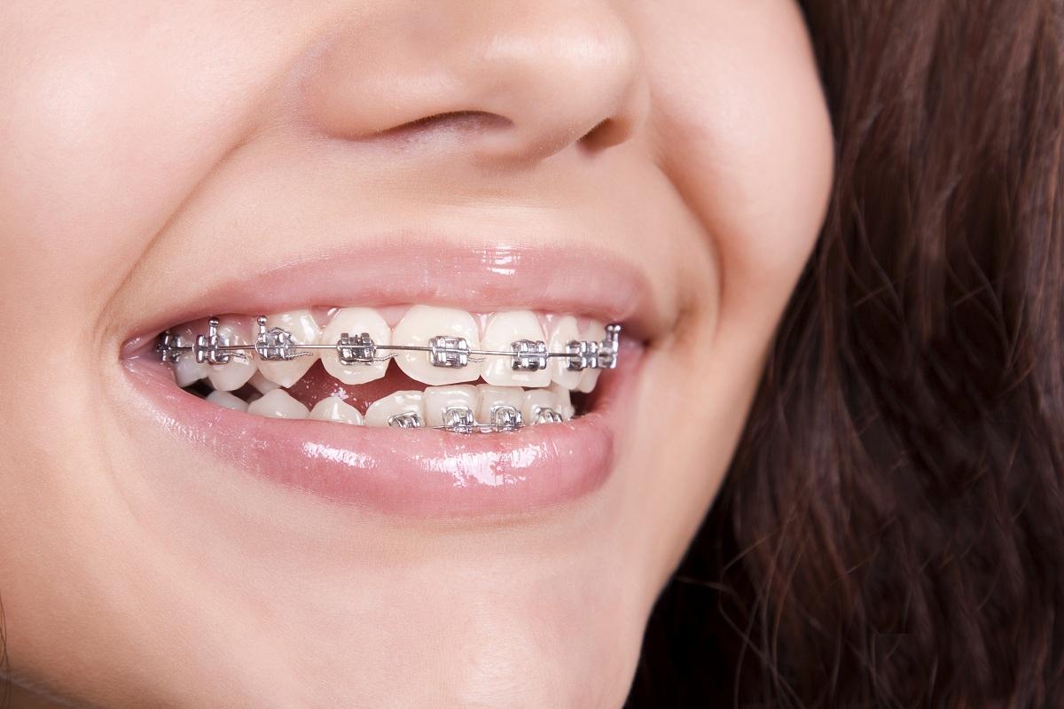 Behel Gigi Kawat Gigi Manfaat Dan Cara Merawat