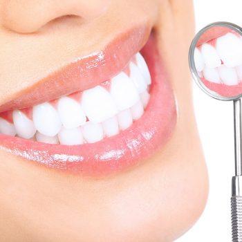 Cara Memutihkan Gigi Dengan Jeruk Nipis Catatan Mini