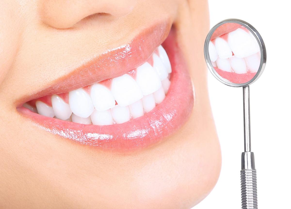 Berbagai Macam Cara Memutihkan Gigi Secara Alami