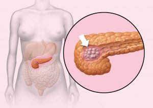 enzim yang dihasilkan pankreas